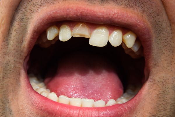How Important Is It To Get Dental Care For A Chipped Tooth?