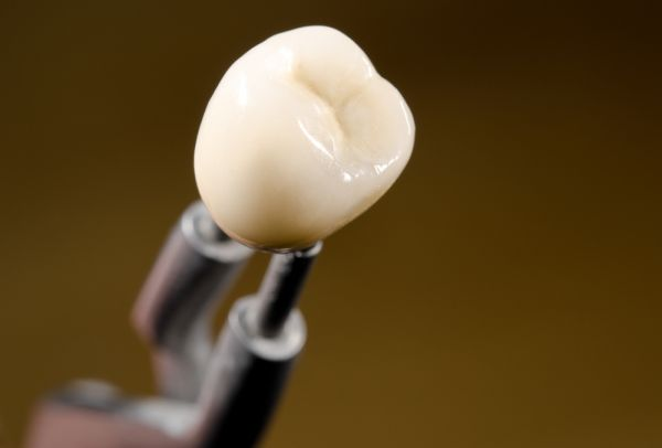 General Dentistry: When Is A Dental Crown Needed?