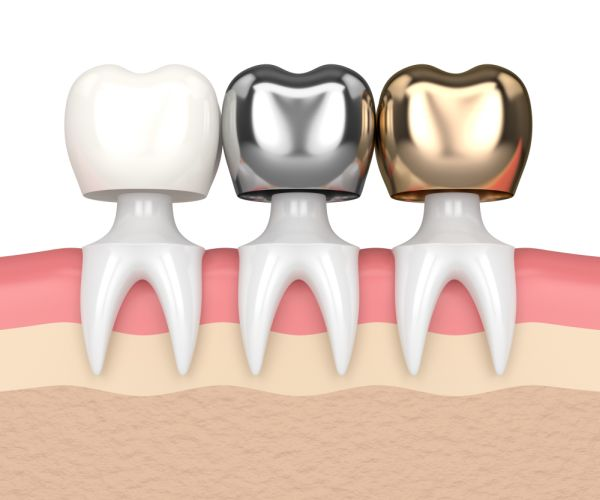 Reasons To Consider Implant Crowns