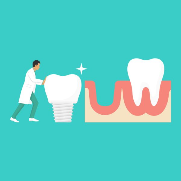 [Cosmetic Dentistry] What Happens After Dental Implants?