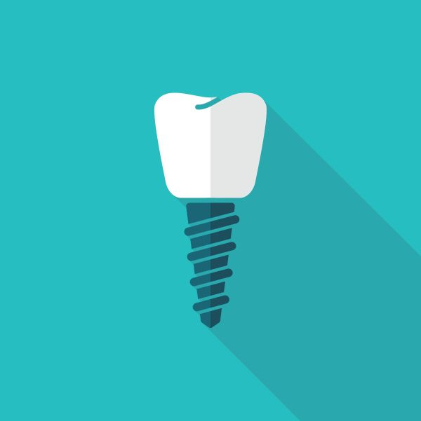 What Happens After Dental Implant Placement?
