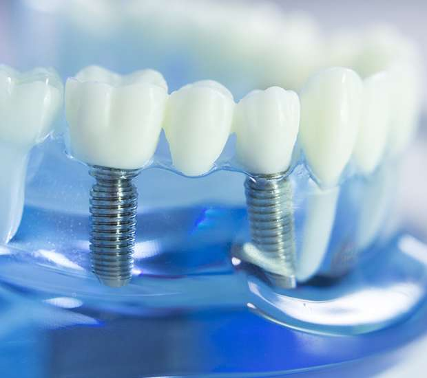 New York Dental Implants
