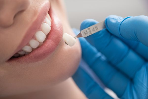How Long Do Dental Veneers Last And How Are They Applied?