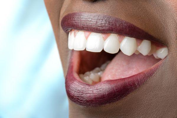full mouth reconstruction New York, NY