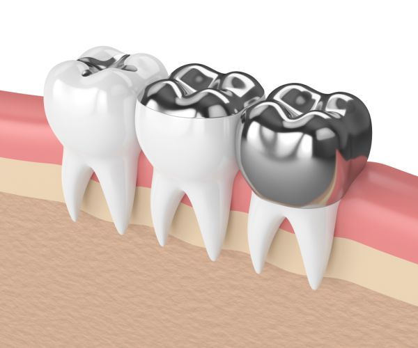 What Can Implant Crowns Do For My Smile?