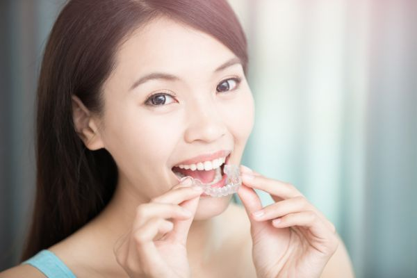 How Invisalign Can Improve Your Smile