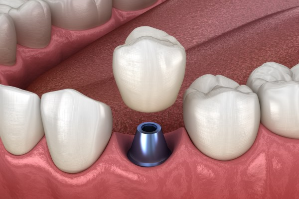 Signs You Might Need Prosthodontics