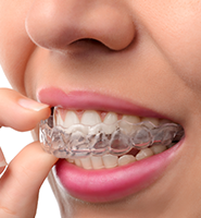 Clear Aligners - Almost Invisible Braces New York, NY
