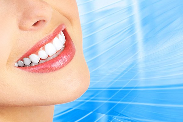 Benefits Of Professional Teeth Bleaching